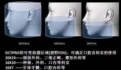 韩国怡友口腔三位全影像CT机用途