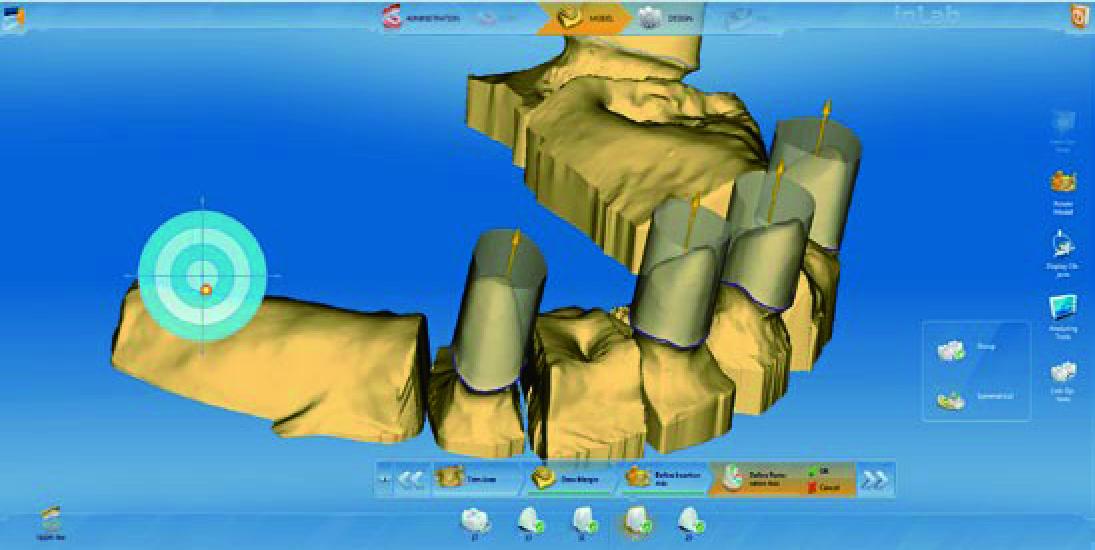 """德国西诺德CAD/CAM全瓷修复系统""""瓷睿刻""""CEREC AC 图片"""