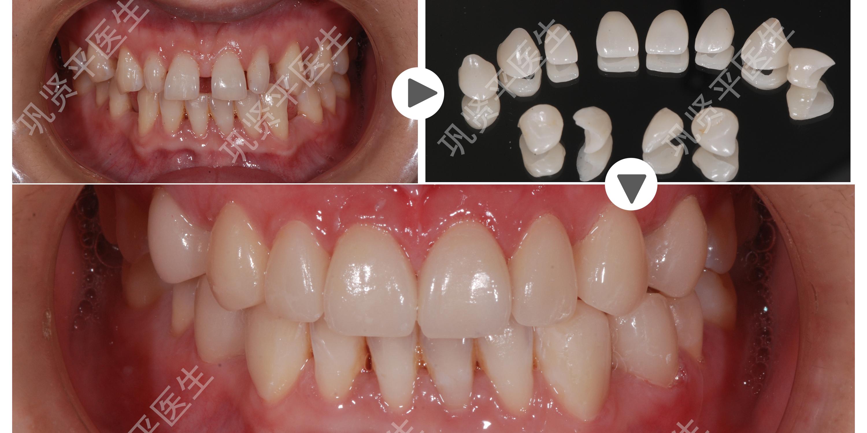 2、美型又改色:瓷贴面除了有美白的效果也能改善原本牙齿过小,过尖、局部损伤所造成的缺点,让牙齿形状更美。现在生活水平的提高,人们不仅对牙齿健康更加重视,对于牙齿除了要求颜色白,就连形状也很讲究,牙齿瓷贴面就像是给牙齿穿上了一件衣服,不仅可以修饰牙齿的形状还可以美白牙齿。 3、不伤牙周:陶瓷贴片的边缘位于牙龈上或稍微向下一点即可,不像一般的假牙一样需要深入到牙龈下,而且瓷贴面的固定使用不溶性的黏固剂封闭,使牙龈的健康状况比假牙牙冠来的好。 4、消磨齿量少:无论是做烤瓷牙还是做牙齿贴面都是要对牙齿进行磨损的。