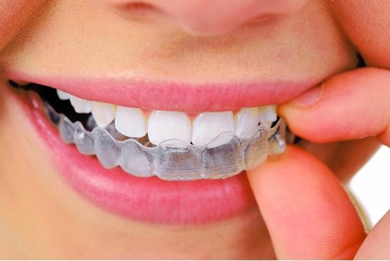 而且在拔牙前,口腔颌面外科医生会做全面的检查,确定局部及全身条件允许。口腔颌面外科医生在有效局部麻醉保证不痛的前提下,将正畸矫治所需拔除的牙完整拔出。拔牙后,只要遵照医嘱,拔牙创口就能很快愈合。   因此,在正畸治疗过程中,只要患者选择正规的牙科医院就诊,遵循医嘱,正畸拔牙不会造成牙齿松动,当然更不会影响神经或产生其他后遗症。   爱康健口腔医院是一所集口腔保健、疾病治疗、功能康复、口腔美容于一体的综合口腔中心,在牙齿修复、牙齿种植、牙齿矫正、牙齿美白等相关口腔美容领域均处于国际领先地位,爱康健特聘香