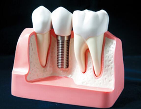 种植牙,牙齿缺失,前牙种植