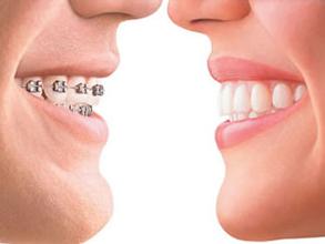 深圳畸形牙齿矫正的方式