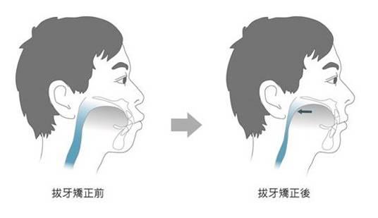 拔牙矫正牙齿的危害有哪些
