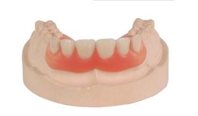 隐形义齿适用症