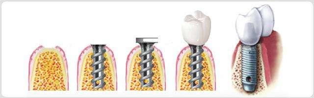 种植牙与活动牙哪种类型的假牙好
