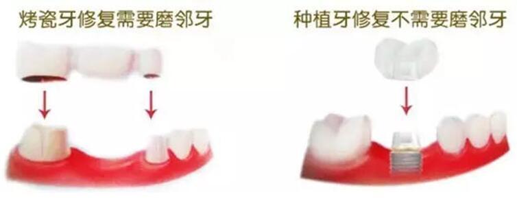 种植牙图解