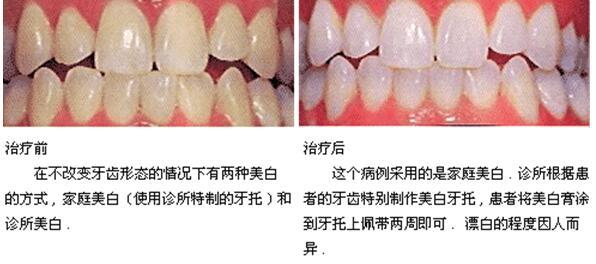 牙齿美白前后