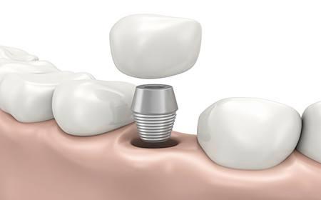 种植牙后可以不吃消炎药吗