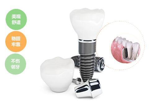 隐形镶牙是怎样的