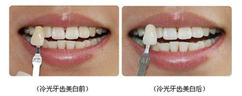 冷光牙齿美白前后