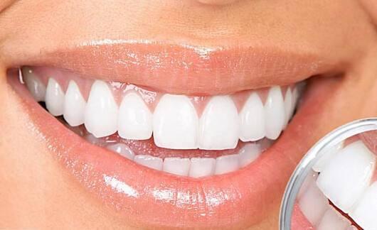冷光美白牙齿是永久的吗