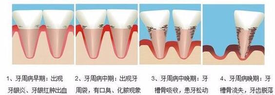 牙周病过程