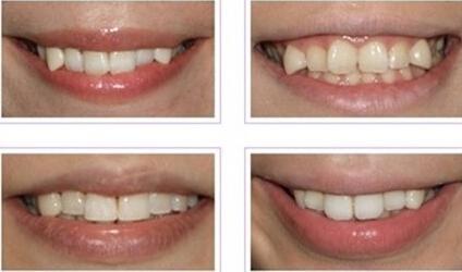 牙齿矫正要拔掉虎牙吗?