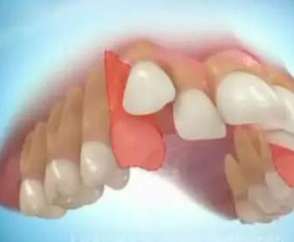 牙齿拥挤好吗,具体是什么情况?