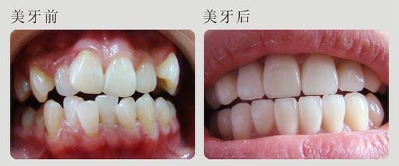 牙齿拥挤前后对比