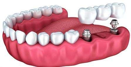 种一颗牙一般需要多长时间