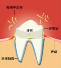 如何去除牙齿旁边的牙结石