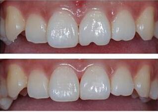 门牙磕坏变瓜子牙修复多少钱