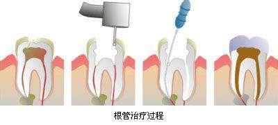 后面的大牙做根管治疗要多少钱