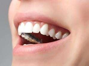 做隐形矫正去哪家牙科好