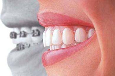 成人做隐形牙齿矫正大概多少钱