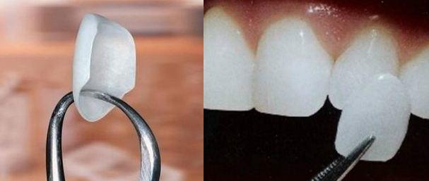 四环素牙齿怎么办能洗白吗