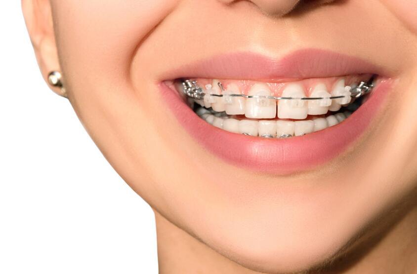 牙齿矫正过程
