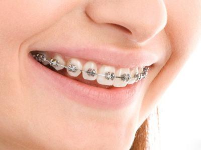 儿童牙齿不齐会影响面形吗