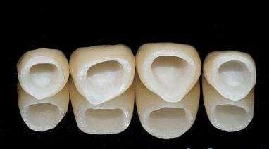 牙齿坏了做美容冠修复需要多少钱?