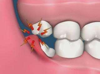 长智齿总是牙疼怎么办