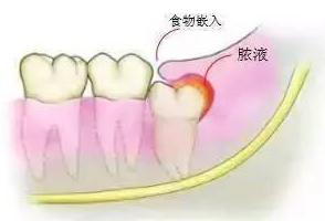春节易发牙齿问题