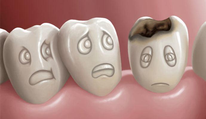 烂牙不拔不治疗会怎么样?