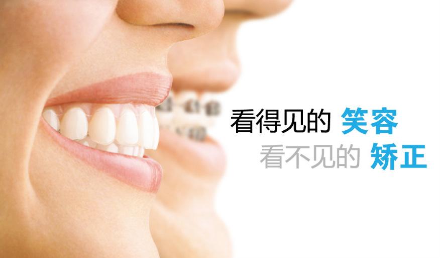 30几岁做牙齿矫正需要多久