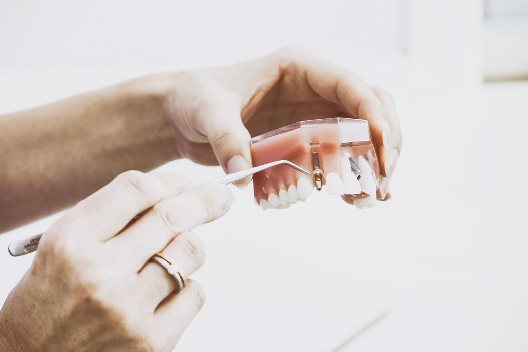 掉了好几颗牙用什么方法修复会比较好