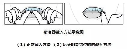 【高能少年团】要不是杨紫在节目中摘下牙套,你知道她正在矫牙吗?