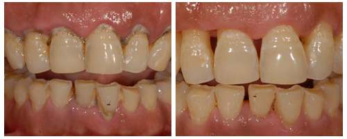 牙结石为什么会带来口臭?