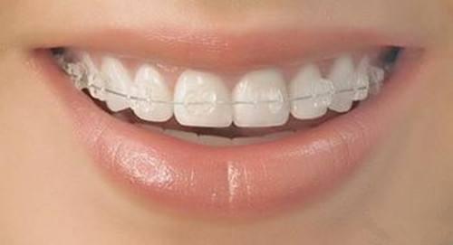 """我宁愿戴着牙套笑,也比你一口乱牙好吧,因为我在变好"""""""