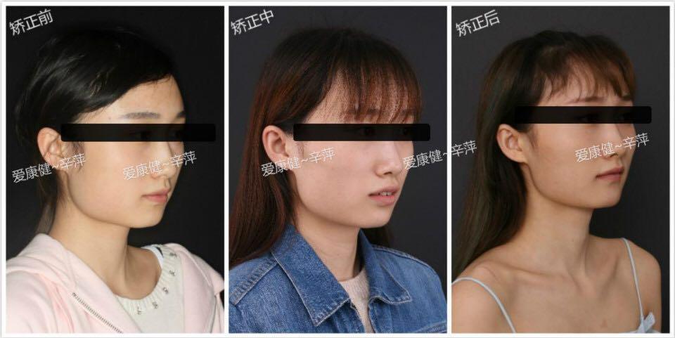 爱康健口腔案例:牙齿矫正瘦脸?去上海哪里打瘦脸针效果好图片