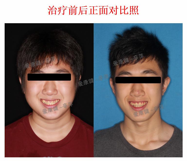 牙齿矫正前后对比照