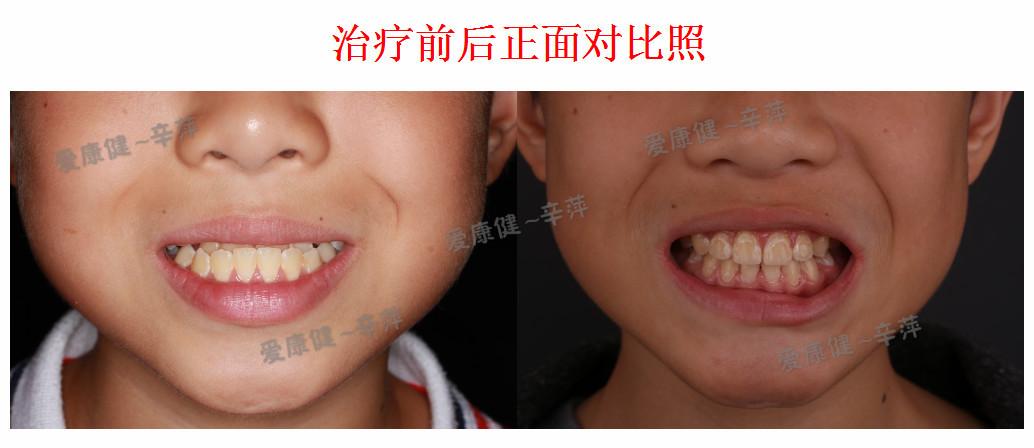 牙齿矫正治疗前后对比