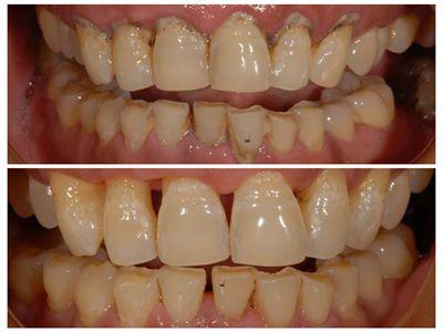 牙结石为什么会带来口臭问题?