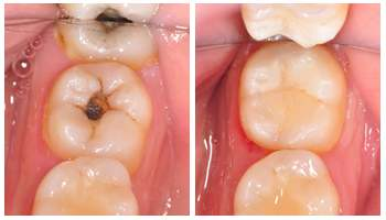 预防蛀牙吃什么好?