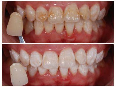 冷光美白会伤害牙齿吗?