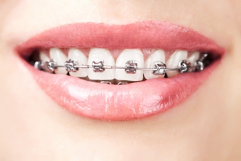 牙齿矫正需要多少钱?