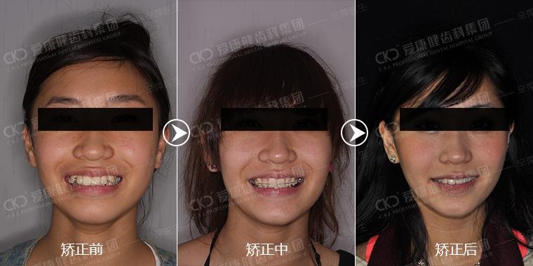 【一图读懂】高晓松拔牙不能瘦脸?那么矫正牙齿瘦脸也是传闻么