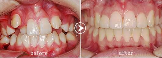 牙齿为什么会不整齐?如何矫正?