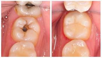 成人也会蛀牙 治疗蛀牙有哪些方法?