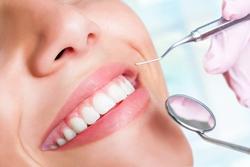牙结石形成的原因有哪些?