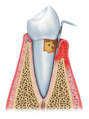 牙结石是怎么形成的?