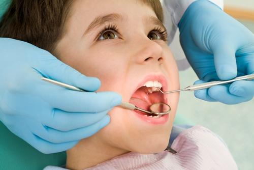 蛀牙是怎么形成的?